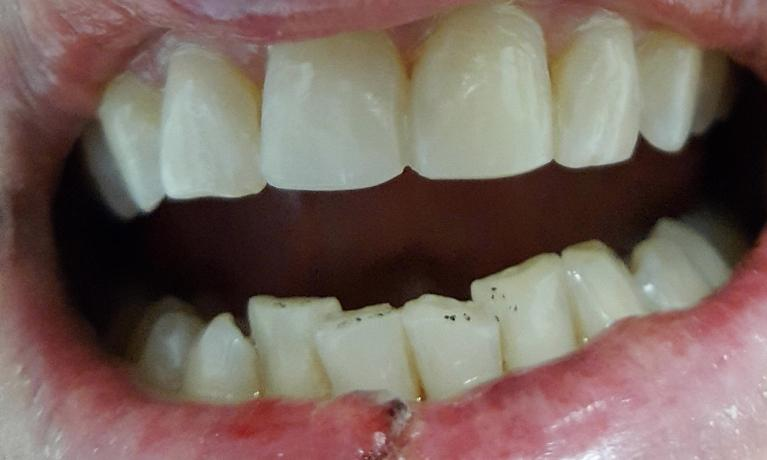 Cosmetic-Dentistry-Bonding-After-Image