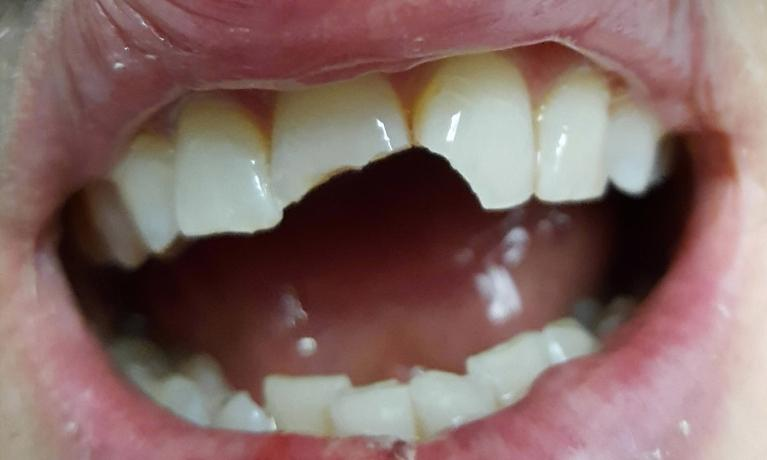 Cosmetic-Dentistry-Bonding-Before-Image