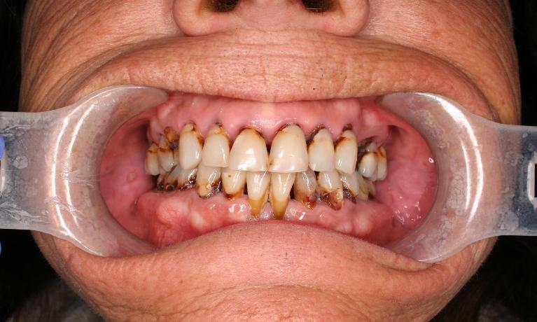 Full-Mouth-Implant-Reconstruction-Before-Image